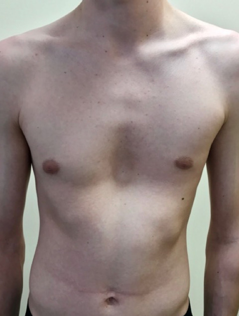 6e2e9d3b0a Before (left) and 3 weeks following non-corrective surgery with pectus  implant (right). Skin marks are noted on the right images due to a  compressive corset ...