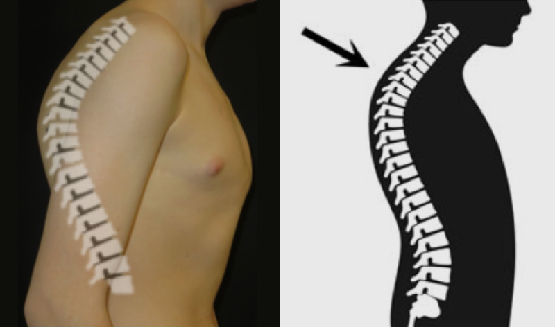 Thoracic Kyphosis in a patient with pectus carinatum