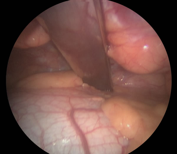 Intraoperative keyhole image inside the right chest cavity