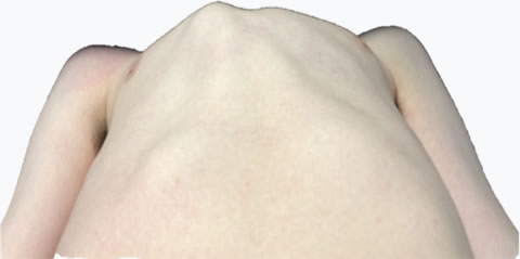 Pectus Carinatum Cross sectional Chest Wall Ratio