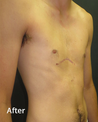 After non-corrective surgery with pectus implant