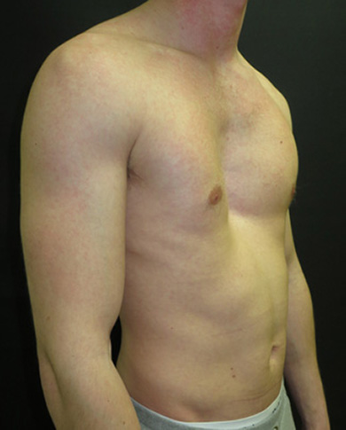 Before non-corrective surgery with pectus implant